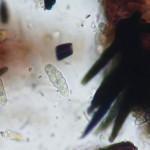 Capronia nigerrima as