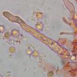 Boidinia furfuracea gloeocystidia