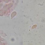 Calyptella capula spores