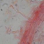 Calyptella capula HH2