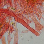 Vuilleminia coryli cystidia