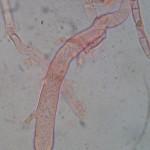 Saccoblastia farinacea basidia