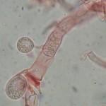 Saccoblastia farinacea basidia with spore
