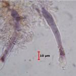 Tubulicrinis strangulatus cystidia3