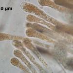 Gyromitra spinosospora paraphyses