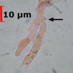 Conohypha terricola basidia