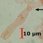 Lindtneria panphyliensis basidia